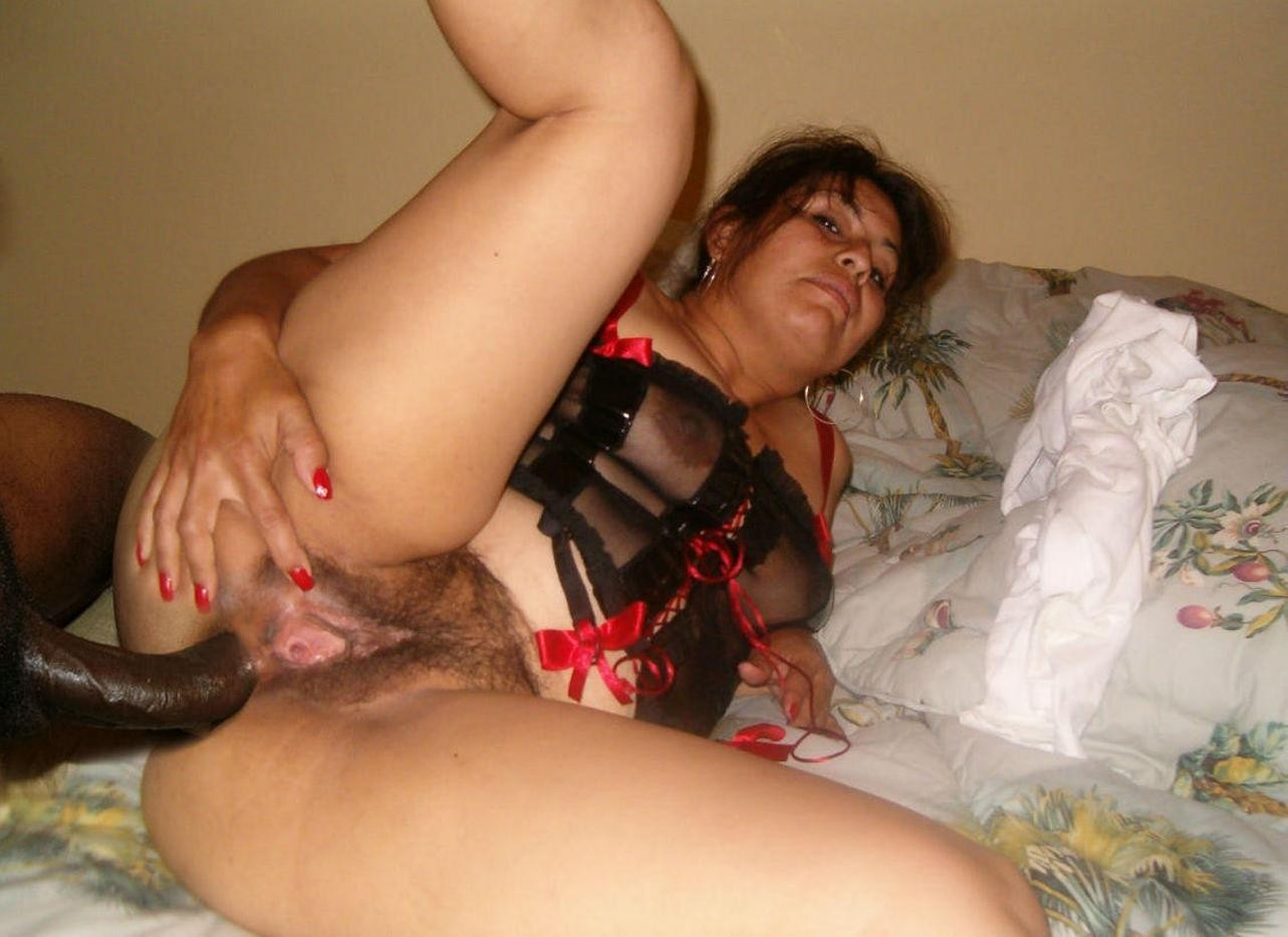 amateur-milf-anal-syneron-foto-facial-reviews